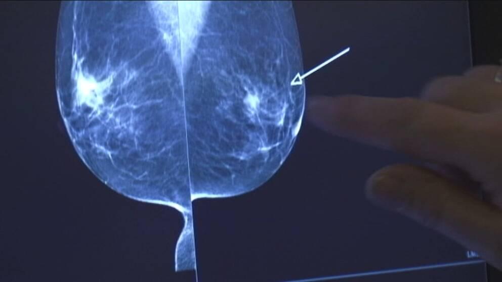 Kvinna blev opererad men hade inte cancer.