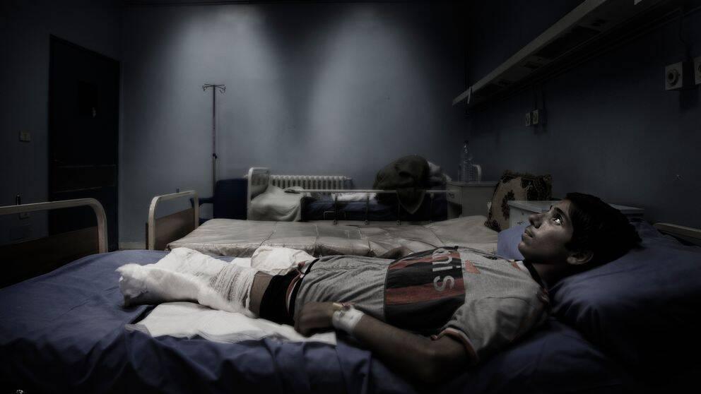 Ahmad Wakaa ligger på sjukhus med amputerade ben.