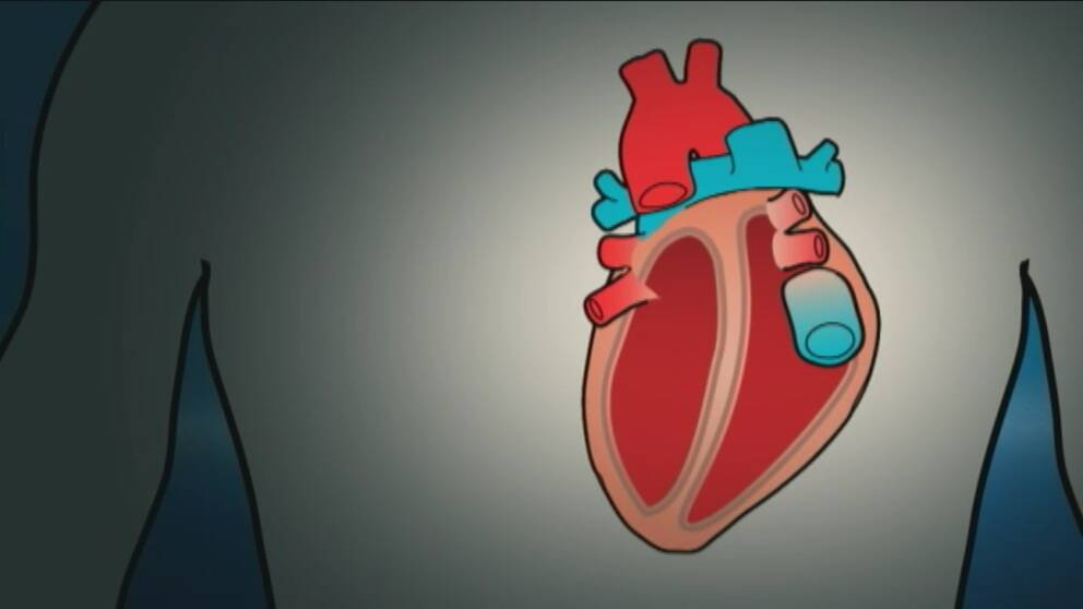 Grafik på ett hjärta