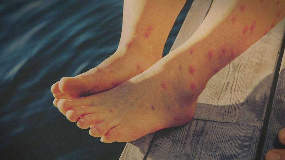 ben och fötter med stora utslag på, på en brygga vid vatten