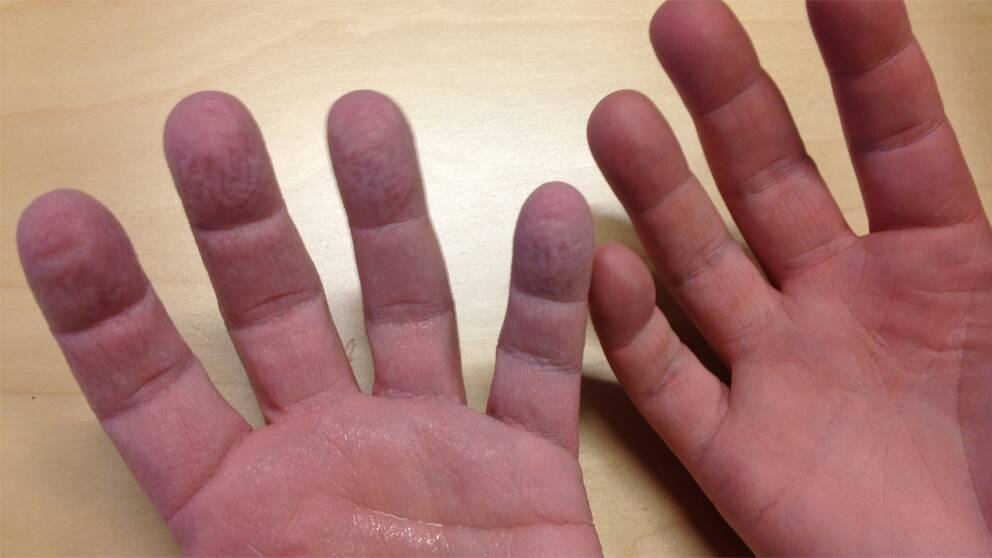 Reporterns händer.