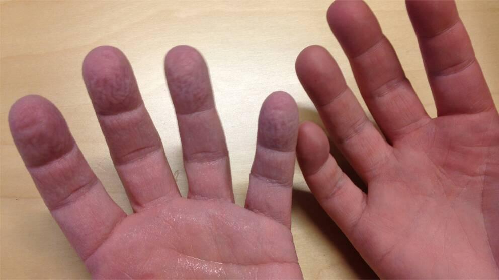 hud flagnar fingrar